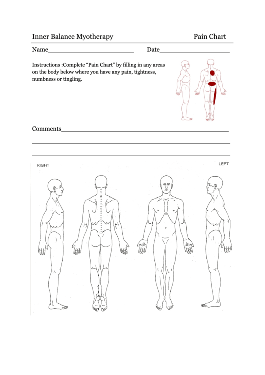33 Body Diagram For Pain